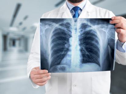 Rak płuc - cichy zabójca. Jakie objawy mogą sugerować tą chorobę?