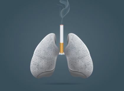 Rak płuc – tyle o nim warto wiedzieć