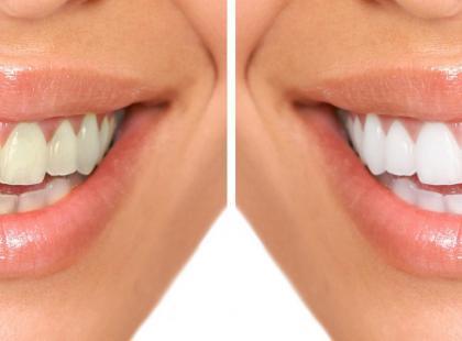 Recounturing na zęby