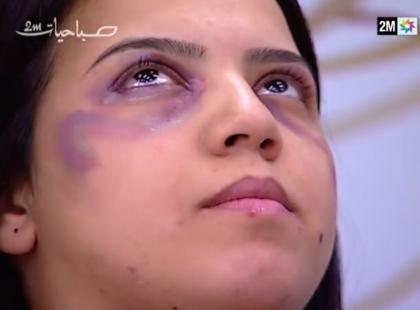 Skandal! Stacja telewizyjna wyemitowała poradnik, jak zatuszować ślady przemocy domowej