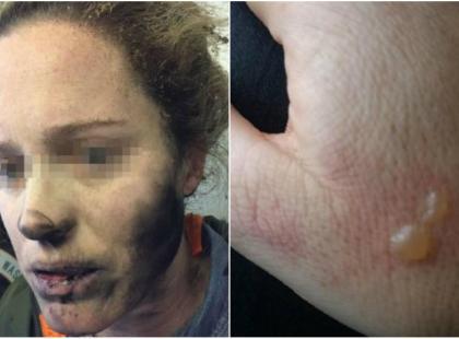 Słuchawki wybuchły jej w uszach i poparzyły twarz!