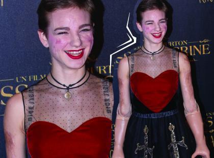 Straciła ręce i nogi, mimo to w kreacji Diora wyglądała pięknie na czerwonym dywanie