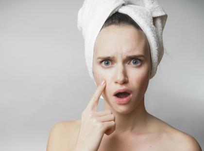 Swędzi, boli, brzydko wygląda… Co może oznaczać wysypka na twarzy?