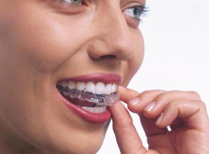 Szyna Invisalign – zamiast aparatu ortodontycznego?