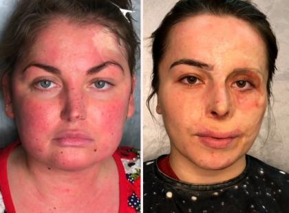 Ta makijażystka udowadnia, że można wyglądać zjawiskowo bez względu na deformacje! Zobacz efekty metamorfozy!