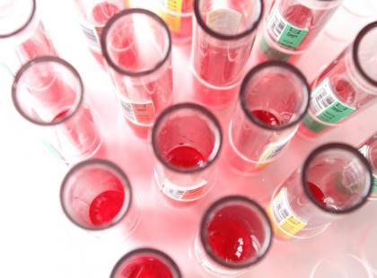 To jeden z teoretycznie najmniej istotnych parametrów morfologii krwi. W praktyce może być wskaźnikiem... białaczki!