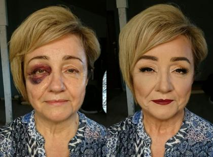 To zdjęcie robi w sieci furorę! Matka panny młodej miała wypadek przed weselem, siniaki zakryła makijażem. Jak go zrobić?