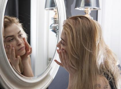 Twoja skóra notorycznie się świeci? A może to łojotokowe zapalenie skóry?