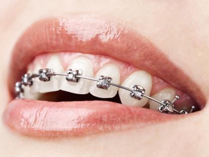 Tylko u nas! Aparat ortodontyczny a codzienna dieta