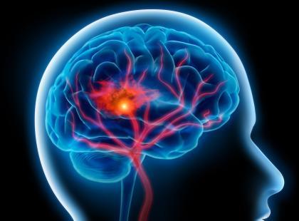 Udar mózgu – tu liczy się czas!