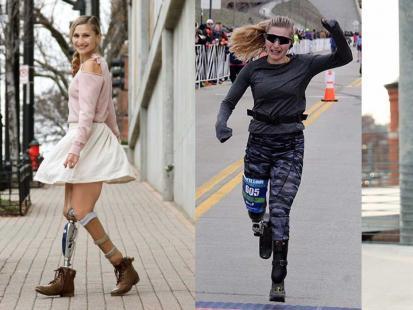 Urodziła się na terenie skażonym po Czarnobylu z czterema palcami i bez nóg. Dziś uprawia crossfit i biega w maratonach