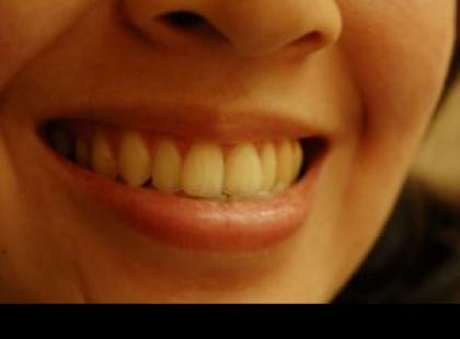 Uśmiech raz!