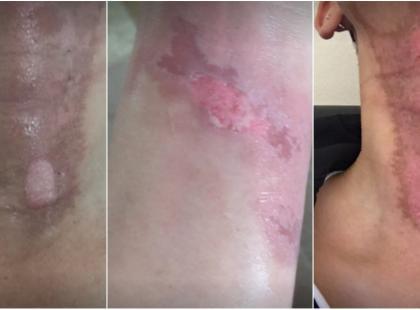 Uwaga! Oparzenia po zastosowaniu TEGO kosmetyku