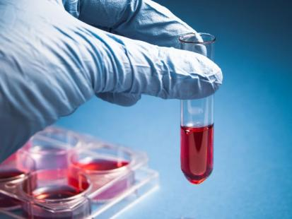 Ważne badanie - białko CRP