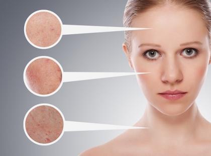 Psychika ma wpływ na wygląd skóry/ fot. Fotolia