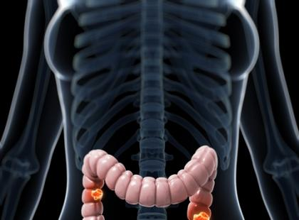 Wrzodziejące zapalenie jelita grubego – czy leczenie będzie refundowane?