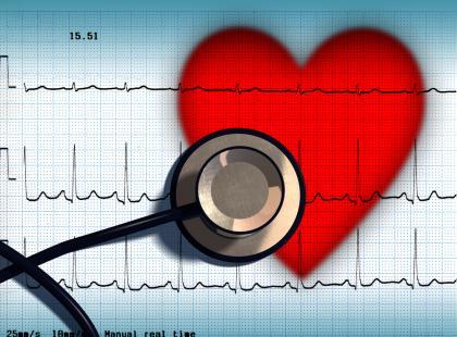 Wstrząs kardiogenny -  uwaga, kłopoty!