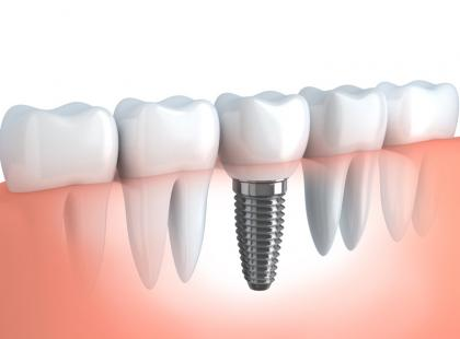 Wszczepianie implantów – wywiad z chirurgiem szczękowo-twarzowym