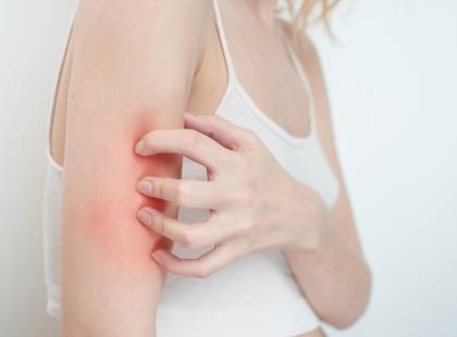 Wszystko o atopowym zapaleniu skóry - poznaj przyczyny, przebieg i leczenie