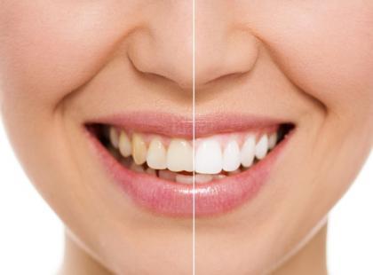 Wybielanie zębów w domu – które metody są skuteczne?