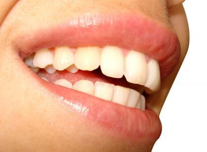 Wykaz materiałów stomatologicznych