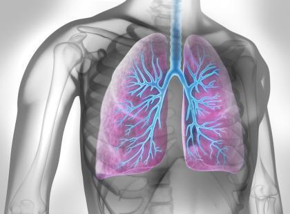 Z forum medycznego: czy to zapalenie płuc?
