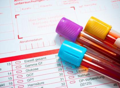 Z forum medycznego: Złe wyniki badań hormonów tarczycy