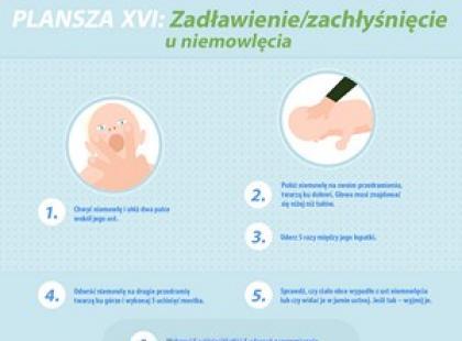 Zadławienie u niemowlęcia – plansza pierwszej pomocy