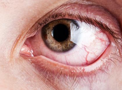 Pęknięte naczynko w oku może być objawem zmęczenia i nadwyrężenia wzroku./fot.Fotolia