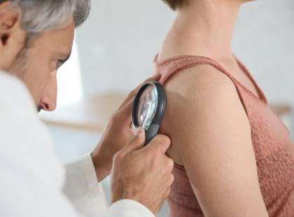 Zdiagnozuj czerniaka – na czym polega system ABCDE?