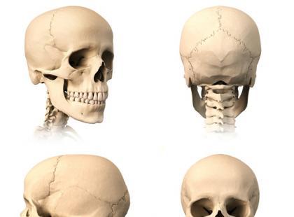 Złamanie kości sklepienia czaszki – pierwsza pomoc