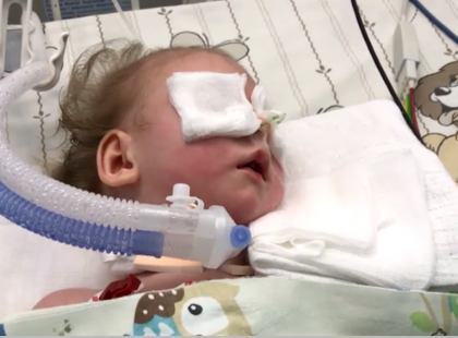 Zmarła półtoraroczna Nel. Dziewczynka miała w płucach ponad 2-centymetrową igłę. Sprawę bada prokuratura