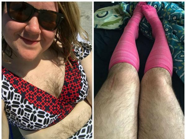 """""""Przez lata nazywano mnie mężczyzną"""". Niezwykle owłosiona kobieta przestała wstydzić się swojego ciała"""