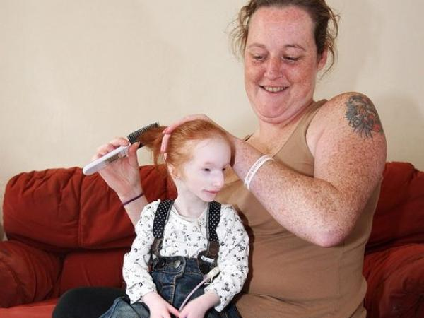 Ta 6-latka to najmniejsze dziecko na świecie. Ma tylko 68 cm wzrostu i ogromną wolę walki! A lekarze twierdzili, że nie dożyje roku...