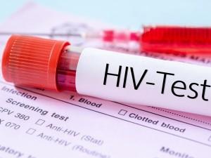 70% chorych nie wie, że ma HIV! Jak sprawdzić, czy jesteśmy wśród nich?