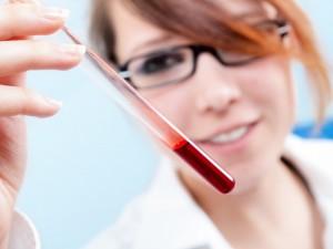 8 ważnych pytań o badania krwi