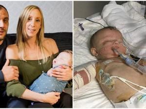 9-miesięczna dziewczynka straciła wzrok i wszystkie kończyny. Dlaczego? Bo nie była zaszczepiona