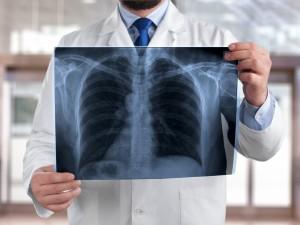 Bezobjawowe zapalenie płuc – jak je rozpoznać i leczyć?
