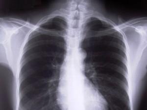 Co oznacza diagnoza niedrobnokomórkowego raka płuca?