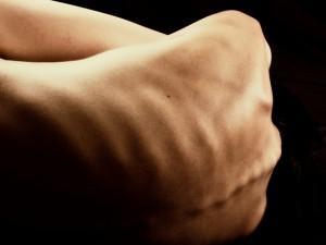 Co to jest postępujące kostniejące zapalenie mięśni?