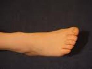Czy wiesz jak poradzić sobie z odmrożonymi stopami?