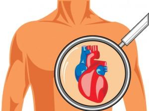 Czym jest tamponada serca?