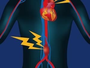 Czym jest tętniak aorty brzusznej?