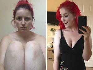 Dwa zdjęcia, jedna ciężka choroba. Wbrew powszechnej opinii nie da się jej rozpoznać…