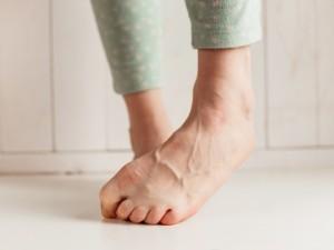Grzybica paznokci jest już plagą – cierpi na nią co piąty Polak. Rozpoznajesz u siebie jej objawy?