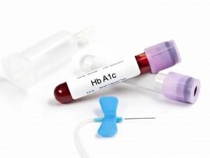 Hemoglobina glikowana HbA1c – nowoczesny sposób kontroli cukrzycy