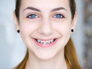 Ile zapłacisz za proste zęby? Sprawdź, ile kosztuje aparat ortodontyczny