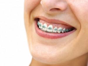 Jak dbać o zęby, gdy nosimy aparat ortodontyczny?