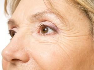 Jak dochodzi do wysuszenia błony śluzowej nosa?