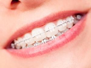 Jak wygląda przygotowanie do założenia aparatu ortodontycznego? – wywiad